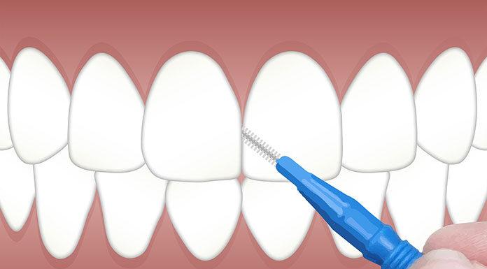 Skaling i piaskowanie - profesjonalne czyszczenie zębów